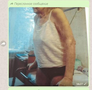 Реальный результат восстановления костного здоровья